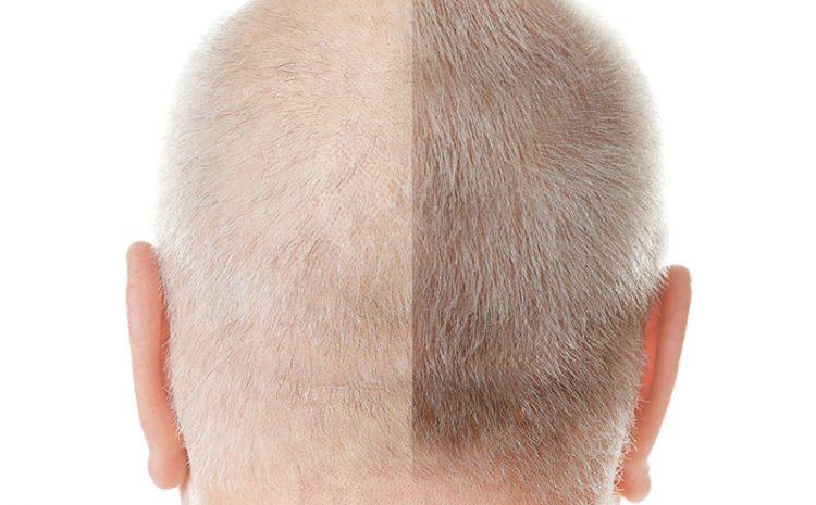 Implante de pelo para hombre