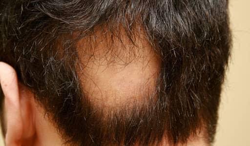 ¿Cómo saber si sufres alopecia prematura?