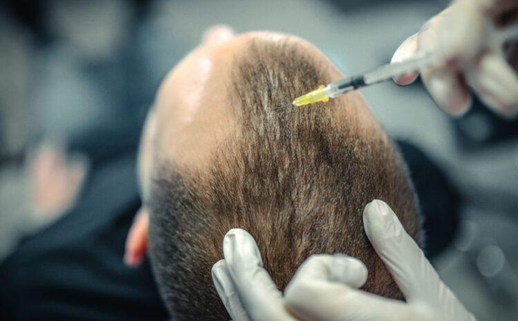 Se descubre un nuevo tratamiento contra la calvicie accidentalmente