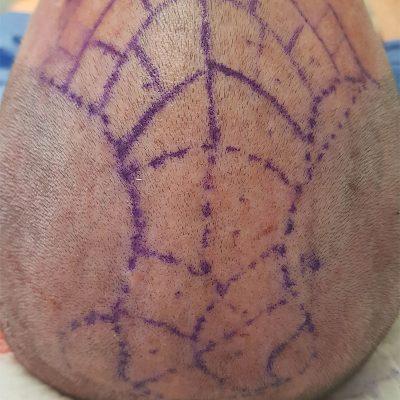cirugia plastica para el cabello